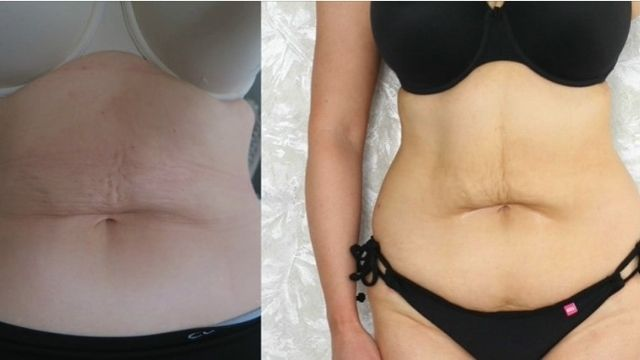 Biotox Gold 2.0 Before After Result